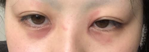が 腫れる 目 白目がぶよぶよに腫れている!?「結膜浮腫」はすぐに眼科を受診すべき?